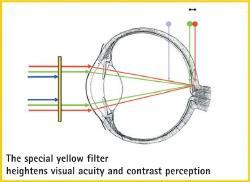 目の焦点と黄色のレンズ